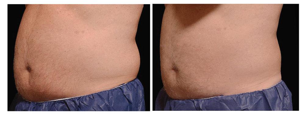 male abdomen.jpg