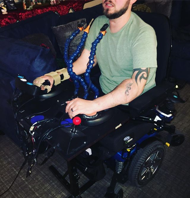 We believe #gaming should always be fun and accessible... even before/after a bilateral arm transplant! thanks John :) #adaptivegaming #gamingforeveryone #a11y #accessiblegaming #accessibletechnology #inclusivetechnology #gaming #videogames #xbox #assistivetech #assistivetechnology #occupationaltherapy #AOTA @xbox