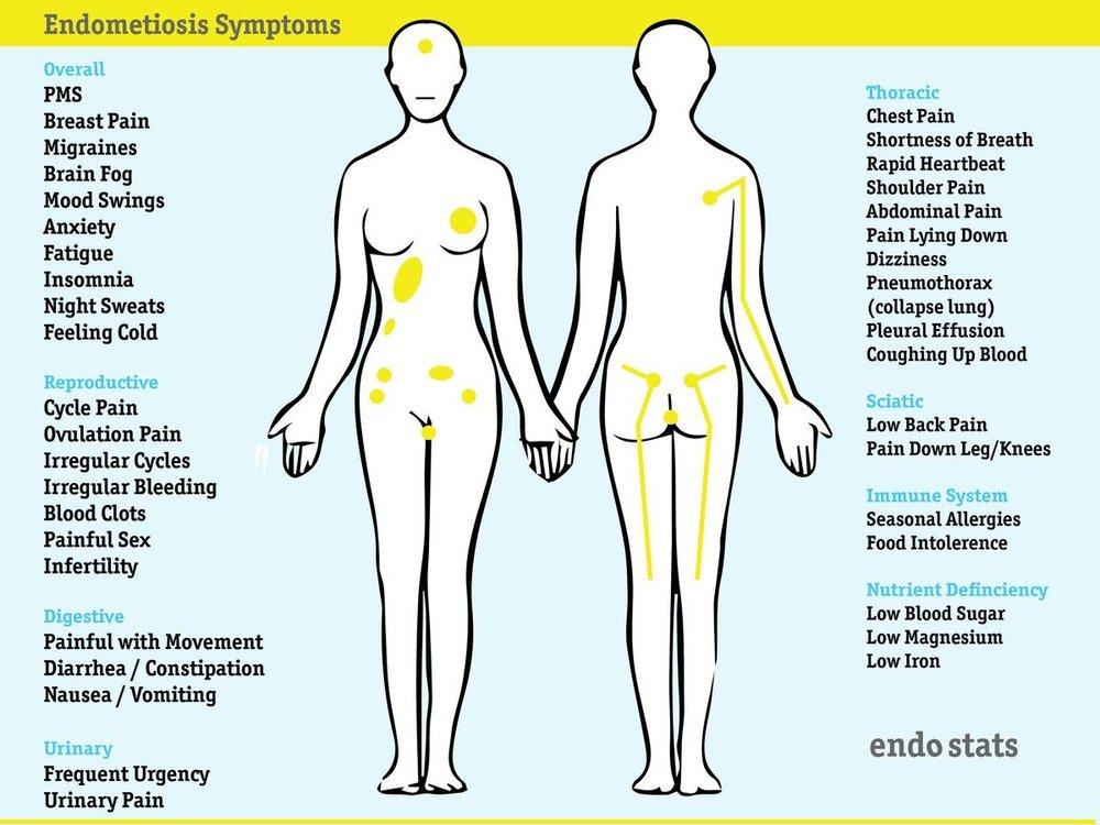 Endometriosis 13.jpg