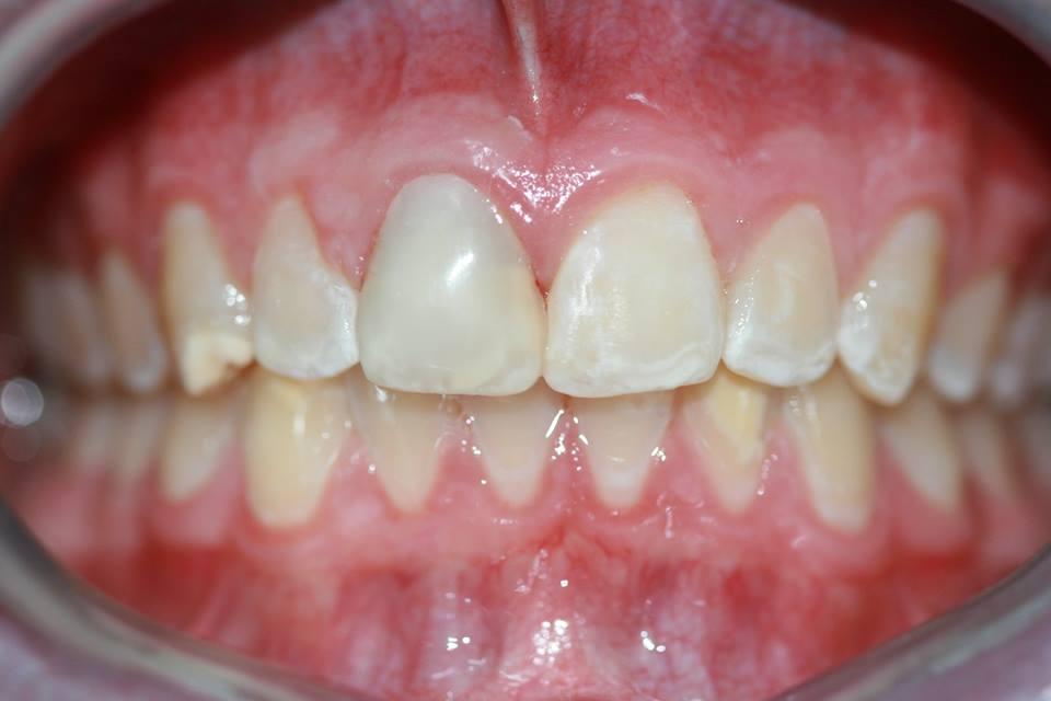 After Composite resin dental filling