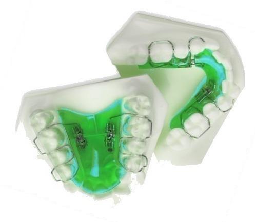 Orthodontics Orthopaedic expanders - dental plates