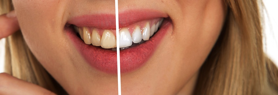 Dental Teeth Whitening - Before and After