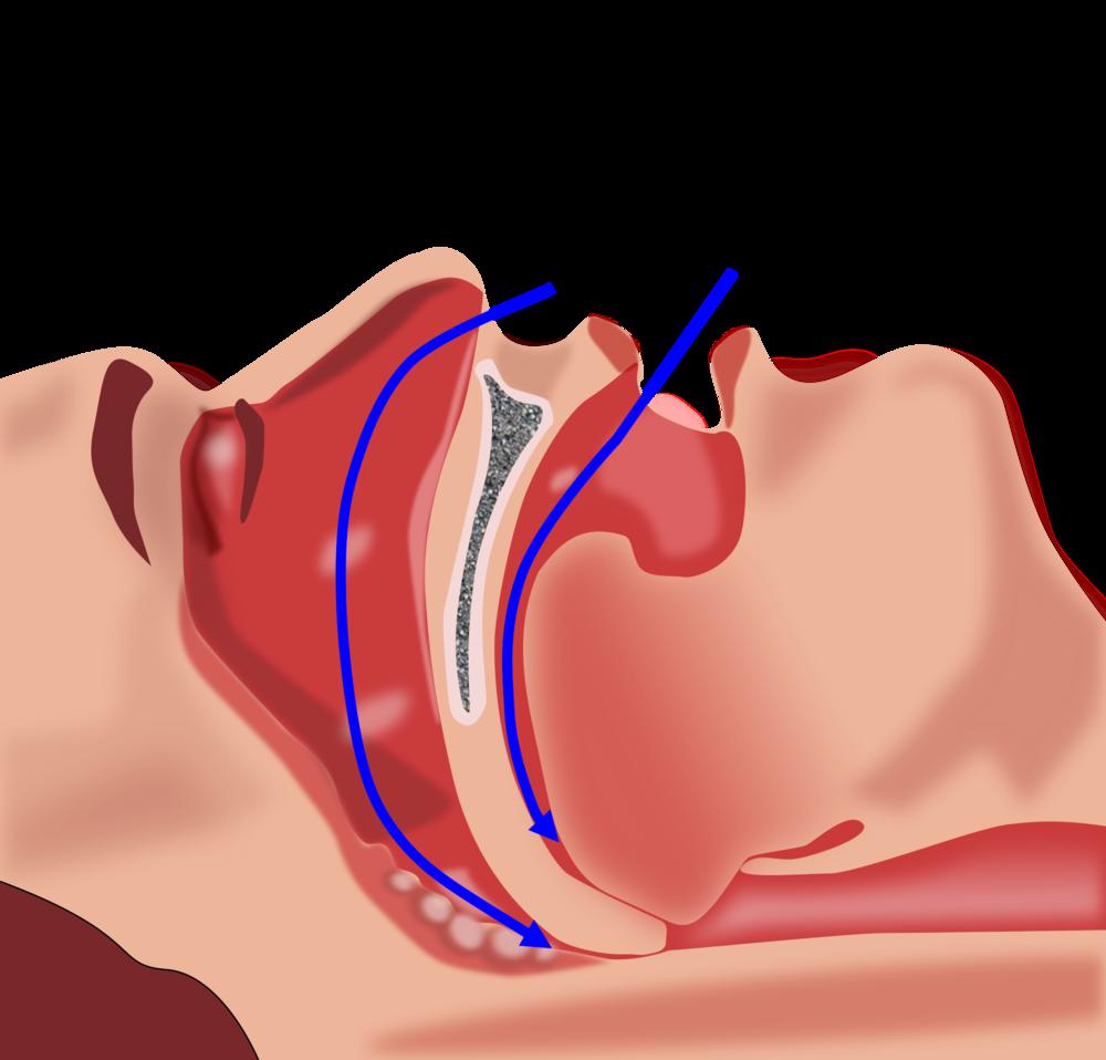 Dentistry - Snoring and sleep apnoea