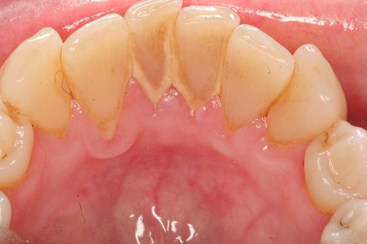 Seven Hills Dental Check up Plaque