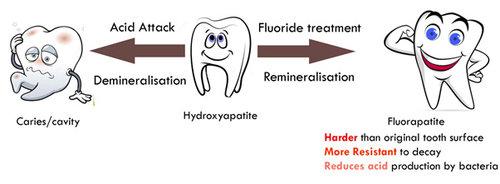 Seven Hills Dentist Fluoride