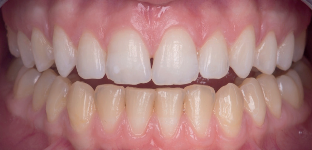 Professional Teeth Whitening - Mid Treatment to compare Upper and Lower teeth