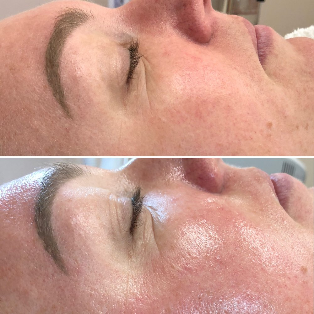 HydraFacial MD Before and After  Cleanse + Peel  Extract + Hydrate  Infuse + Protect