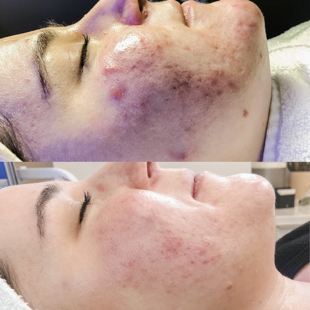 Acne client on aggressive treatment plan  Before & After 4 HydraFacial | High Frequency | LED Light Therapy Treatments & SkinCeuticals home care regimen.
