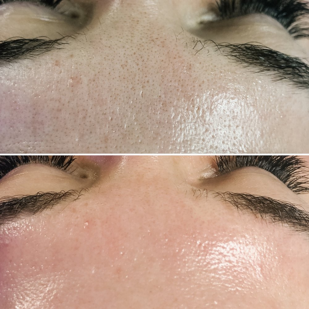 Before & After HydraFacial MD & Manual Extraction
