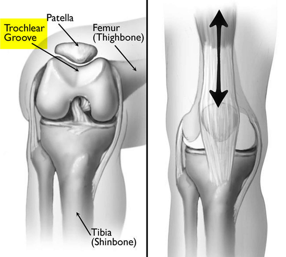 patellofemoral-joint.jpg