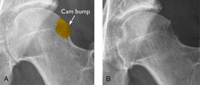 AP Radiographs of the left hip illustrating a CAM lesion (A) pre- and (B) post-resection.