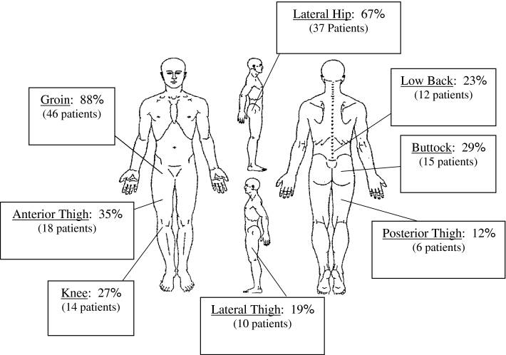 This landmark study by Clohisy et al. (CORR 2009) documented the typical presentation of patients with hip impingement.