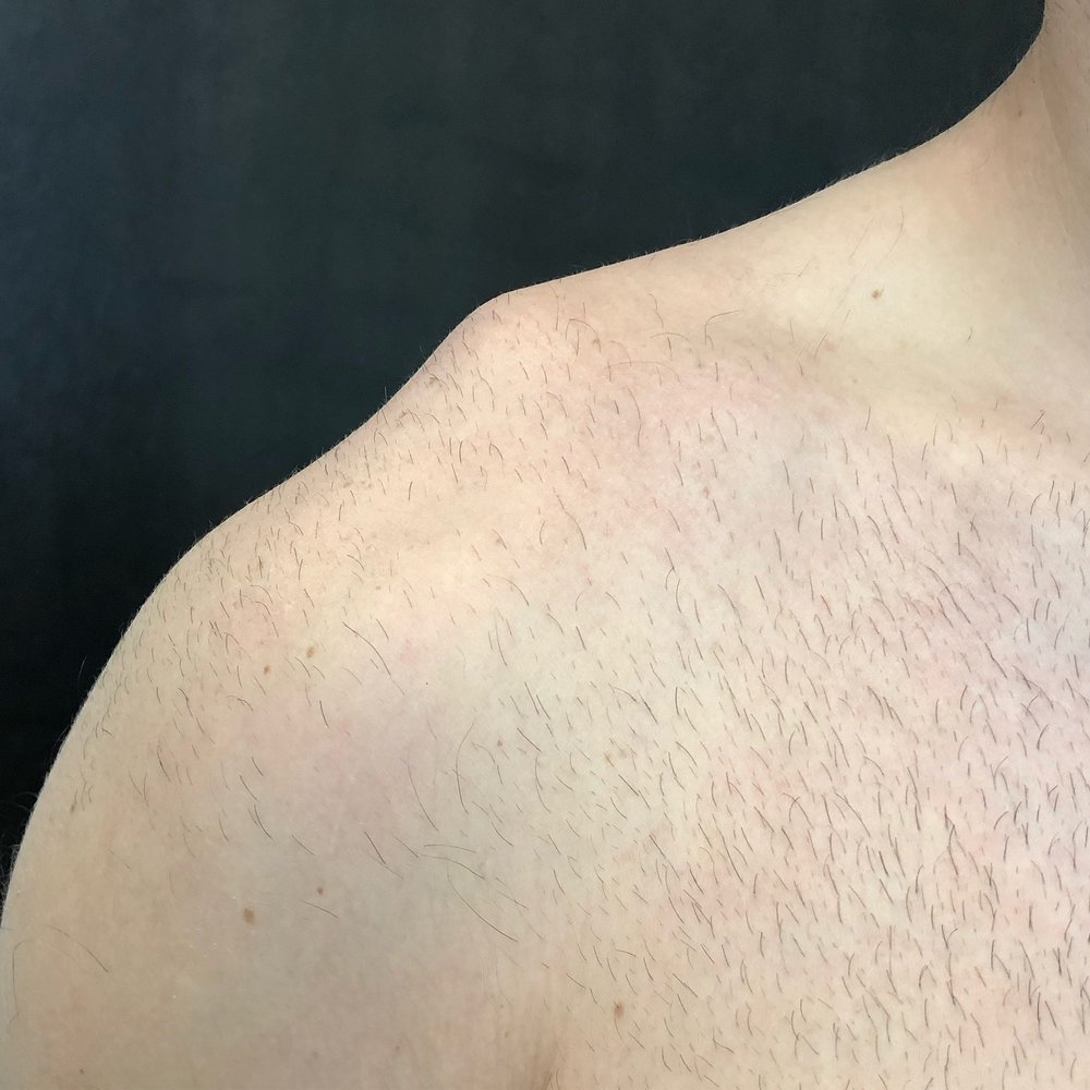 """The typical shoulder """"bump"""" seen with high grade separations is shown here."""