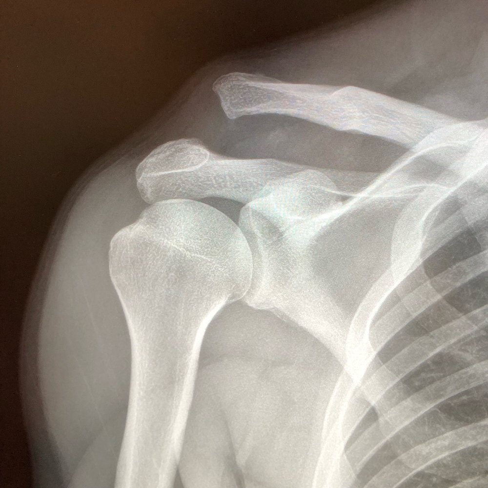 The XRays confirms a Type V AC joint separation, with the CC distance > 100%.