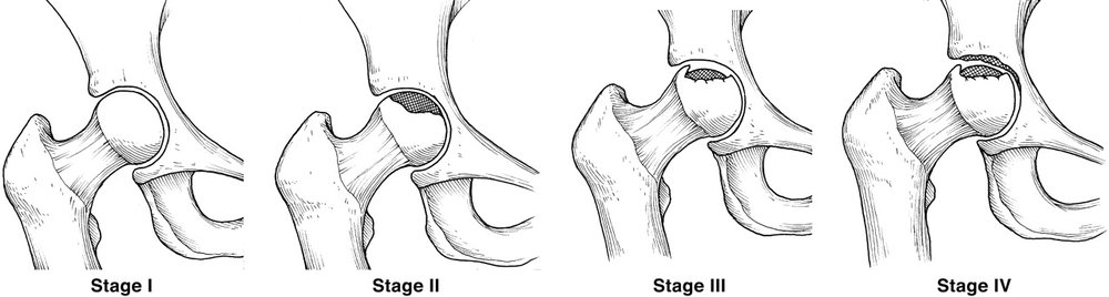 Ideally, AVN of the hip is recognized and treated before Stage III (subchondral collapse of the bone). Core decompression can help prevent the progression of the disease to advanced osteoarthritis.