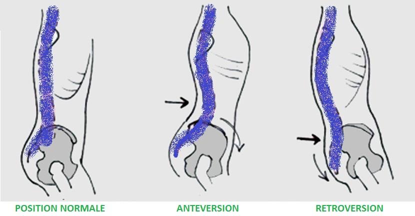bassin_anteversion_retroversion