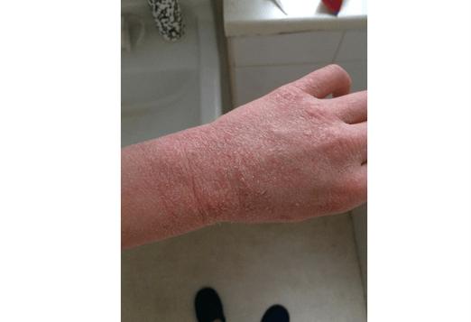 Alana-wrist-canva.png