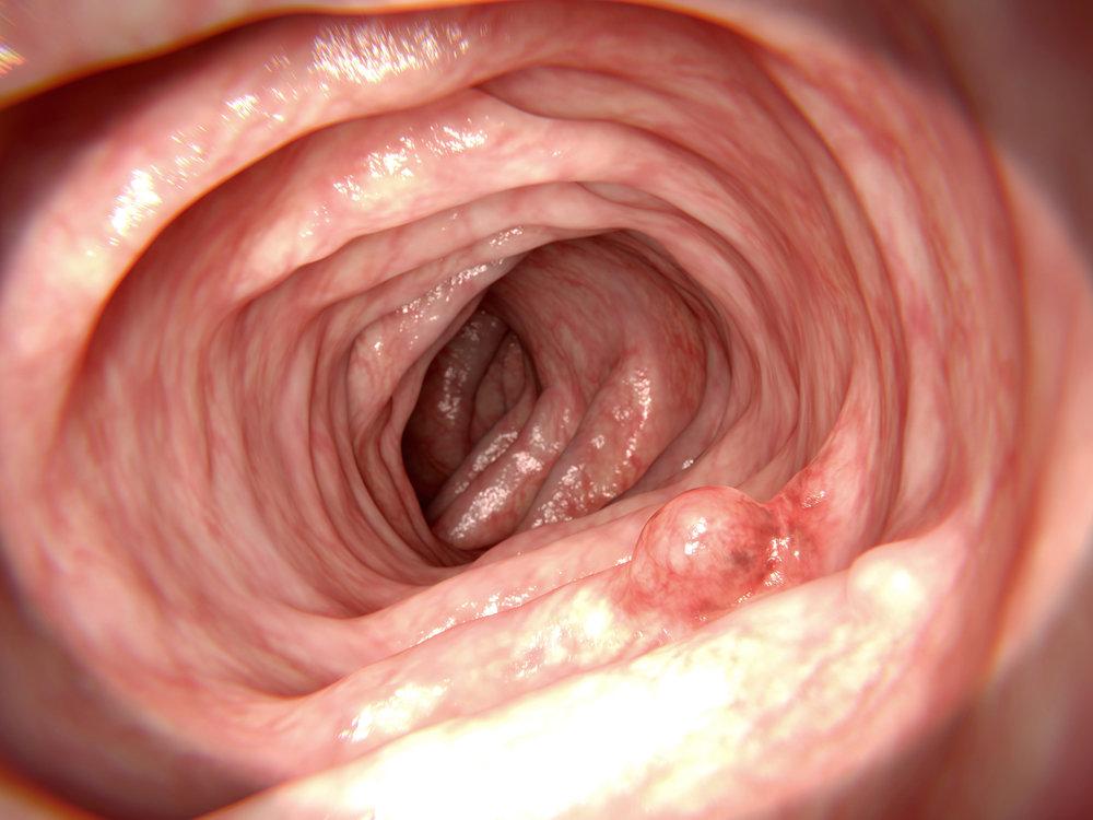 wondergut-colon-cancer-fibre-diet-microbes.jpg