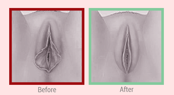 What is Vaginal Renovation?.png