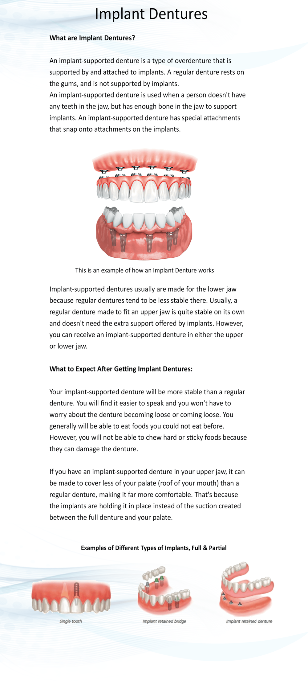 Dentures Implants full Page-min.png