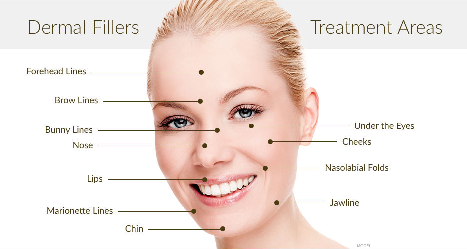 dermal-filler-treatment-areas-wellington-.jpg