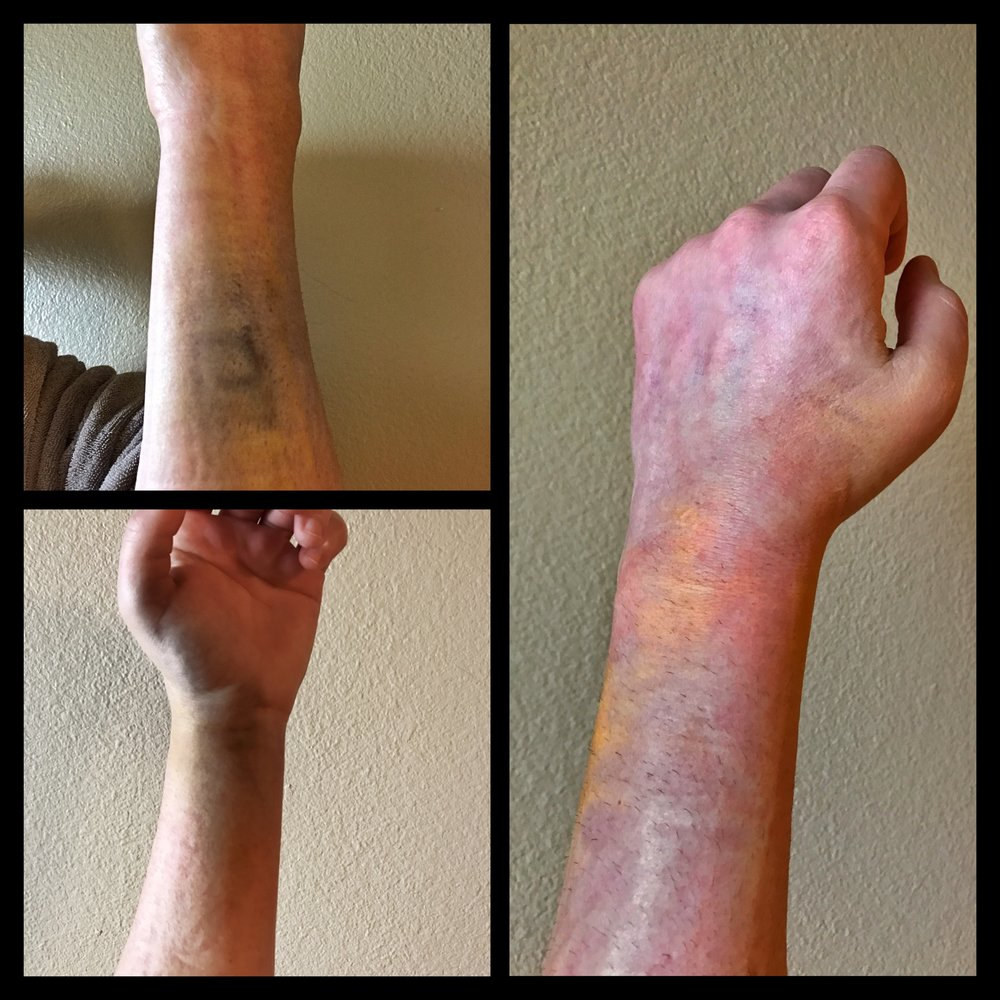 bruising and inflammation 3 days after