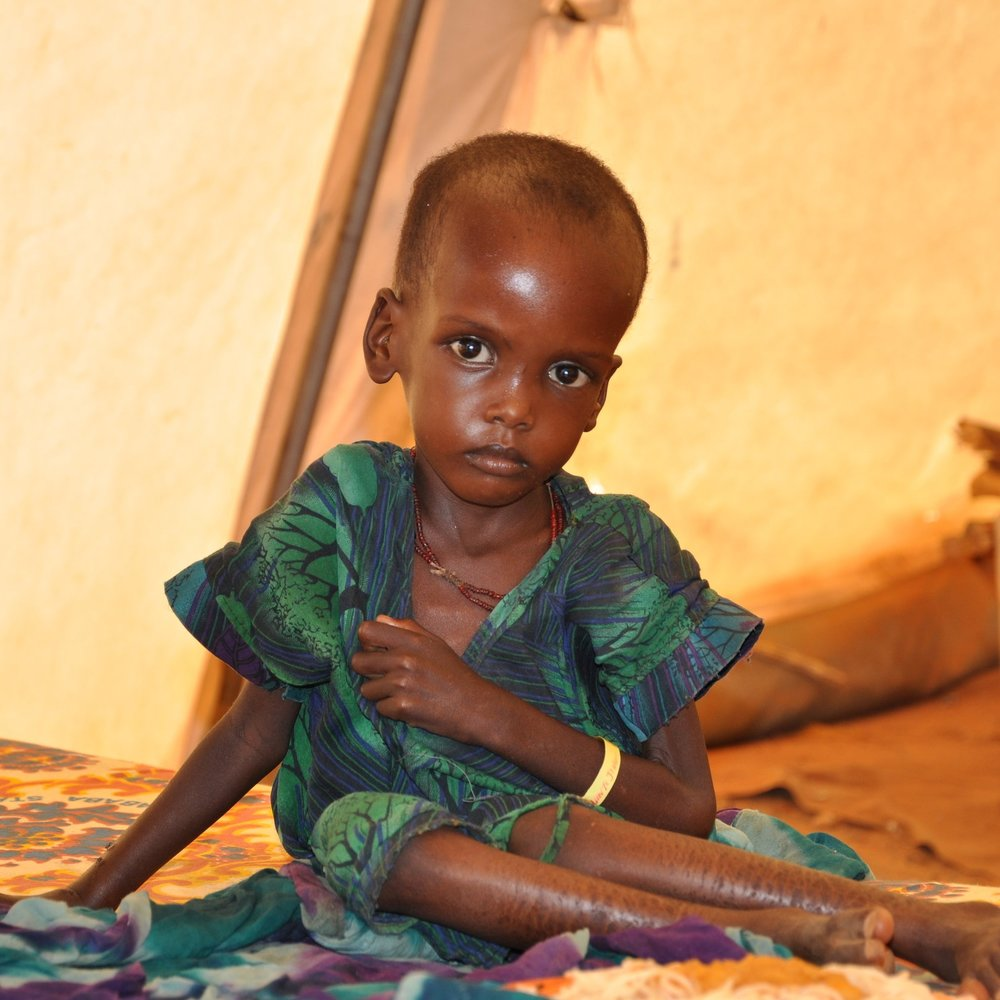 A malnourished child in an MSF treatment tent in Dolo Ado.  Source: Cate Turton/Department for International Development