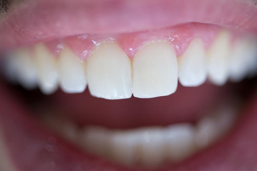 estética-dental-foto-completa.jpg