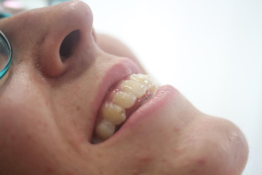 ortodoncia-buena.jpg
