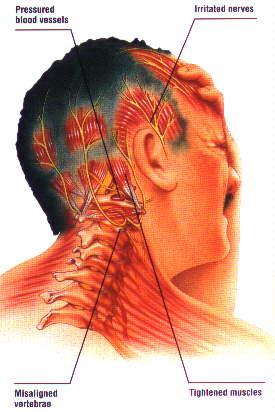 headache (1)