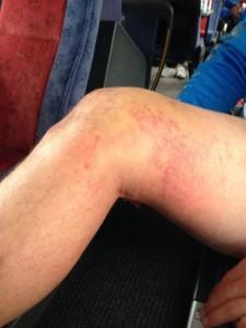 Kade Snowden's Injured knee