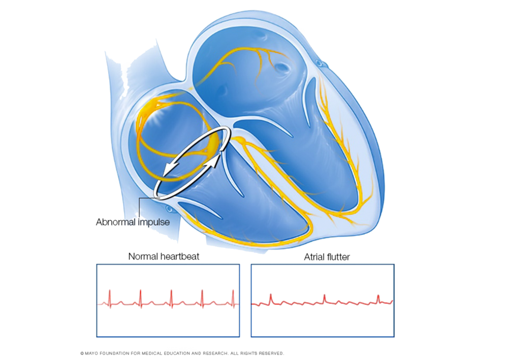 Atrial flutter_Coastal_Heart_Medical_Group.png