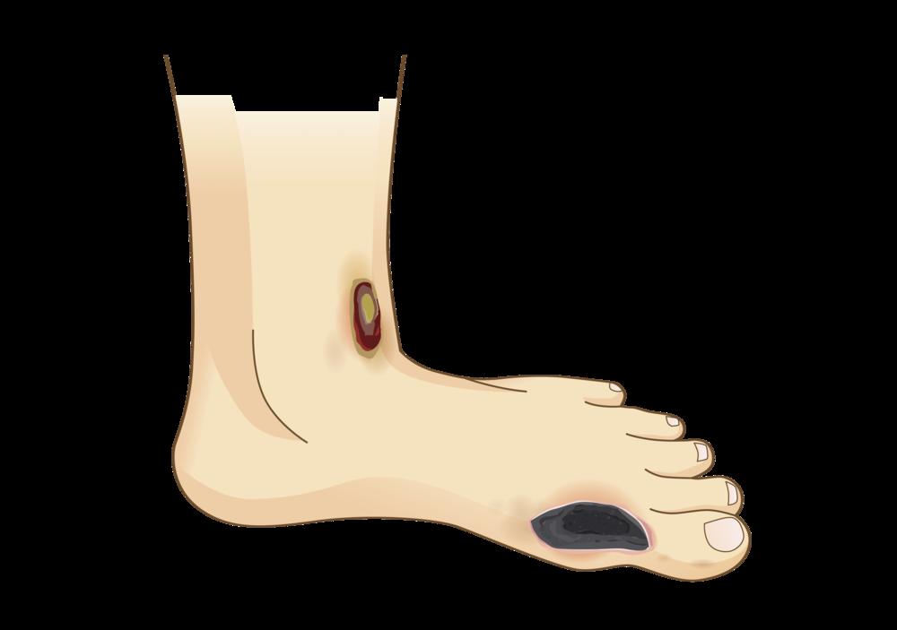 Diabetic Foot Ulcers & Foot Pain.png