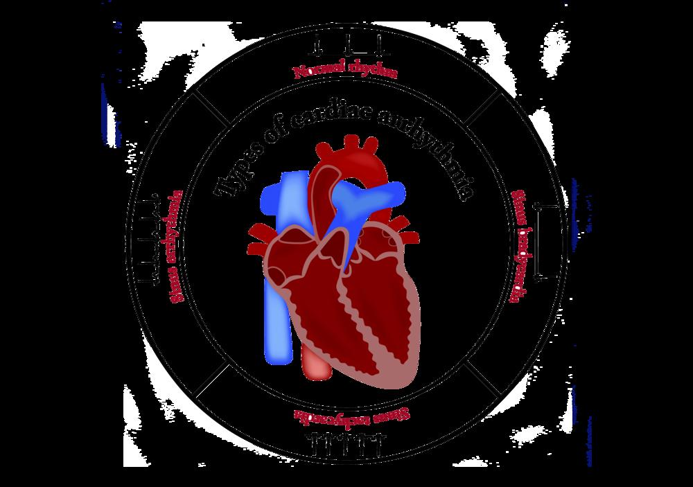 Varicose veins_coastal_heart_medical_group.png