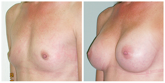 Breast Aug BA-Full-II.jpg