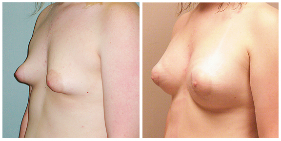 Breast Aug BA-Full-III-3-4.jpg