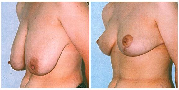 Breast Lift Patient III-Full.jpg