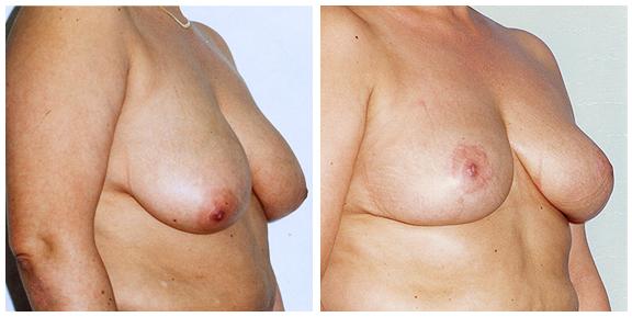 Breast Lift Patient IV-Full.jpg