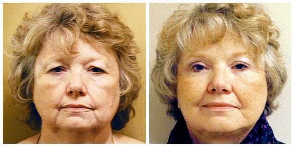 Facelift Patient III-Full-Ft.jpg