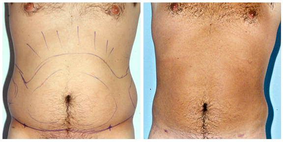 Liposuction BA-Full-III.jpg