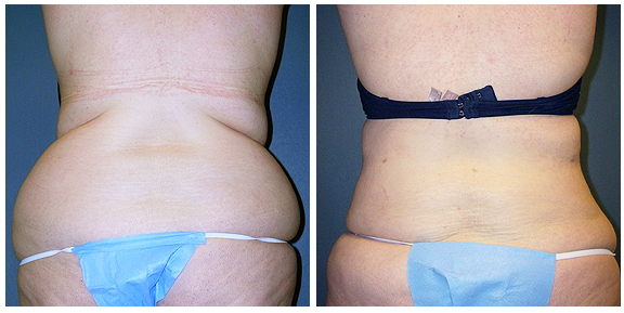 Liposuction BA-Full-IV.jpg