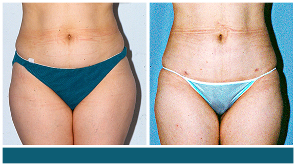 Liposuction BA-Full-I.jpg