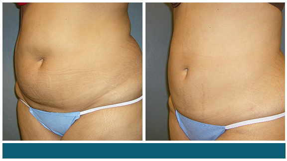 Liposuction BA-Full-II.jpg