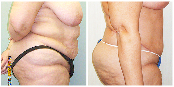 Tummy Tuck-Pat III-Side.jpg