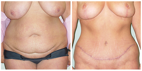 Tummy Tuck-Pat IV-Ft.jpg