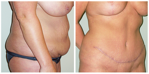 Tummy Tuck-Pat IV-Side.jpg
