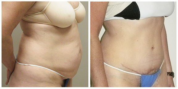 Tummy Tuck BA-Full-I-Side.jpg