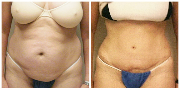 Tummy Tuck BA-Full-I-Ft.jpg
