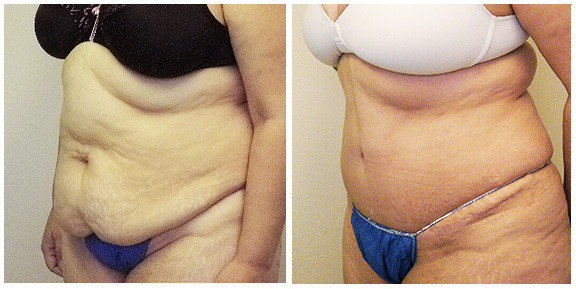 Tummy Tuck BA-Full-II-Side.jpg