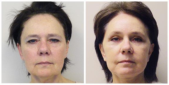 Facelift-Patient III-Ft.jpg